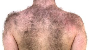Excess back hair triggered by anabolic steroids